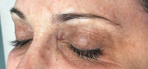 Before & After Microblading Before Microblading