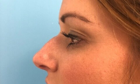 Liquid Rhinoplasty Before Liquid Rhinoplasty