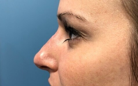 Liquid Rhinoplasty After Liquid Rhinoplasty