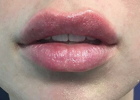 Before & After Lip Filler After Juvederm Vollure