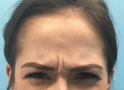 Before & After (Glabella) Before Botox (Glabella)