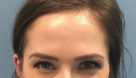 Before & After (Glabella) After Botox (Glabella)