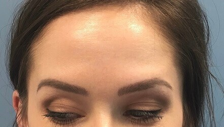 Before & After (Forehead) After Botox (Forehead)