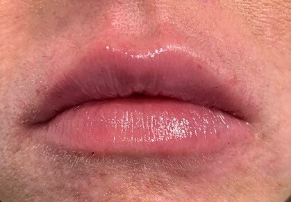 Before & After Lip Filler After Juvederm Lip Filler