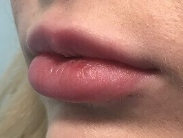 Before & After Lip Filler Before Juvederm Ultra Plus