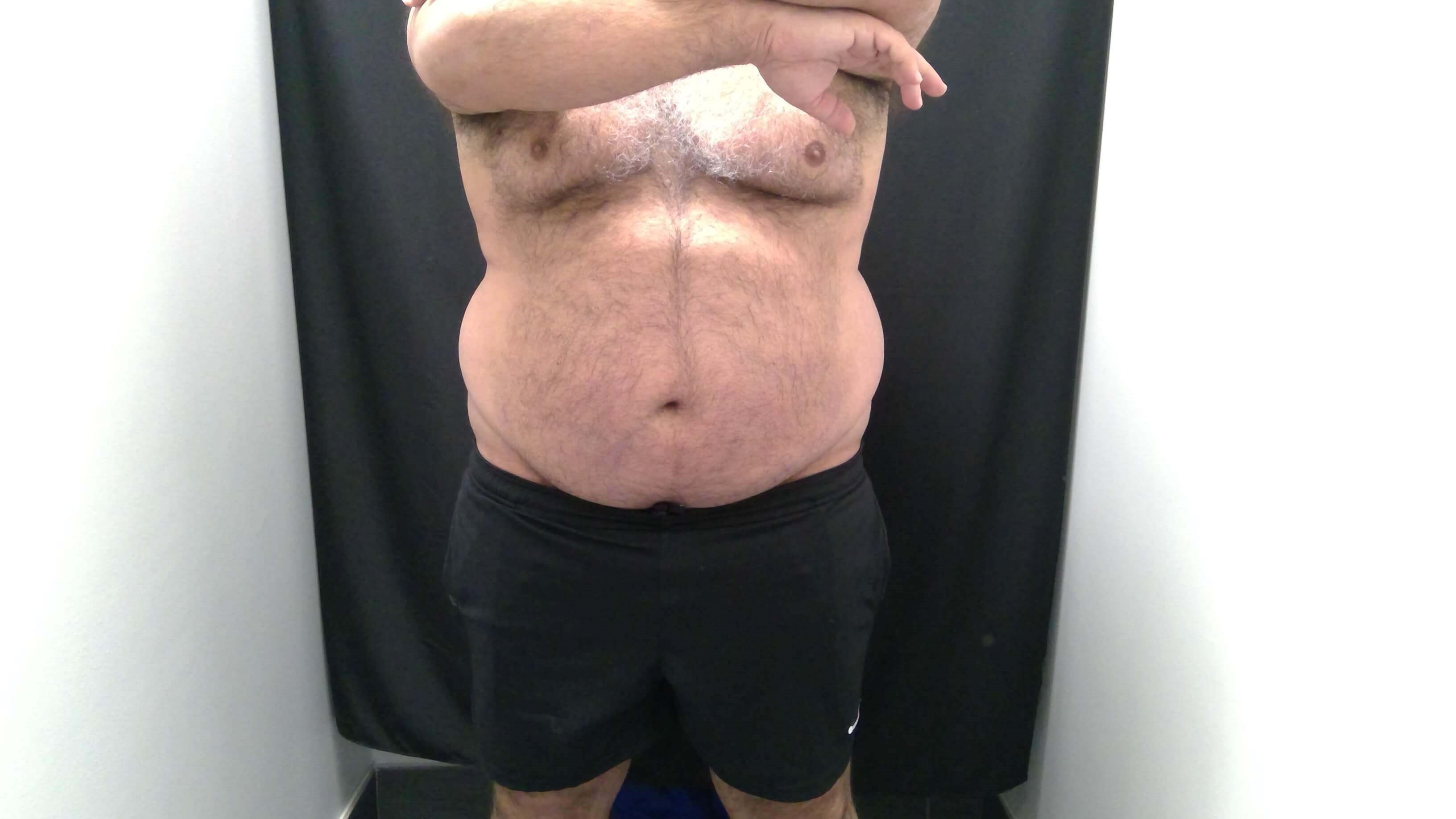 CoolSculpting Before and After Before - Front