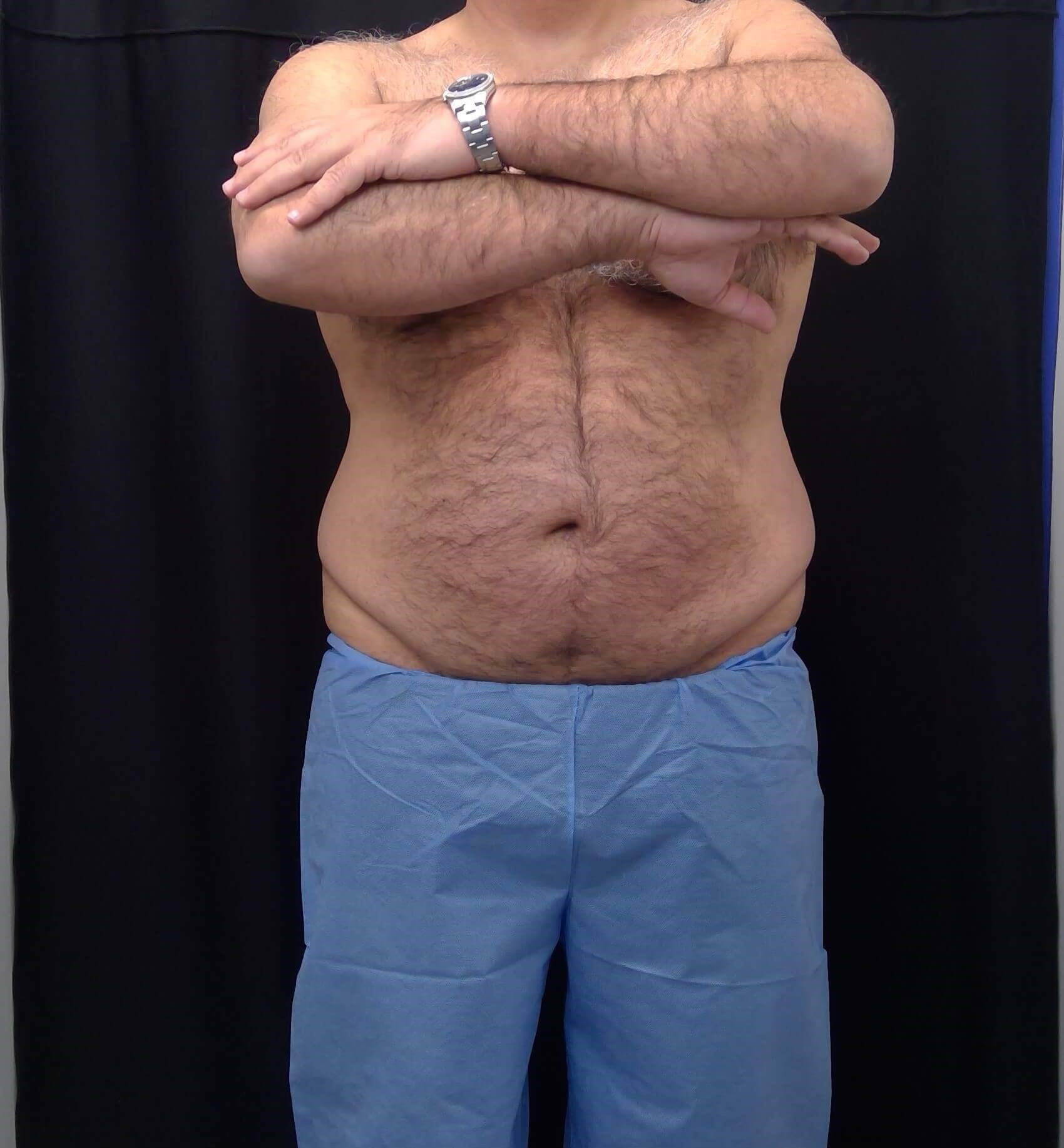 CoolSculpting Before and After After - Front