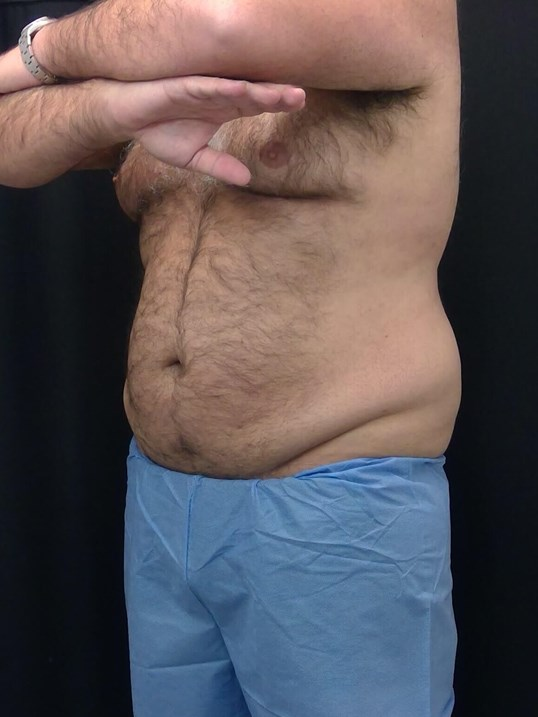 CoolSculpting Before and After After - L Side