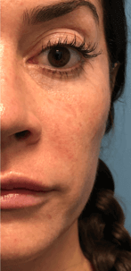 Juvederm Voluma XC Tear Trough After