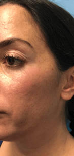 Juvederm Voluma XC Tear Trough Before