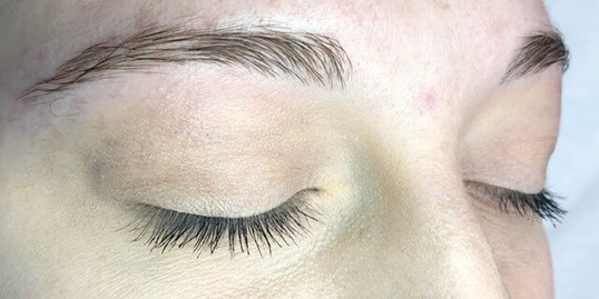 Microblading Before & After Before