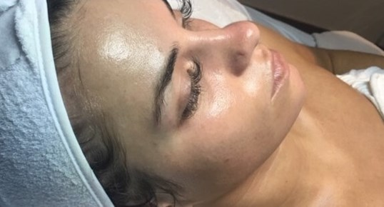 Dermaplaning and Facial After