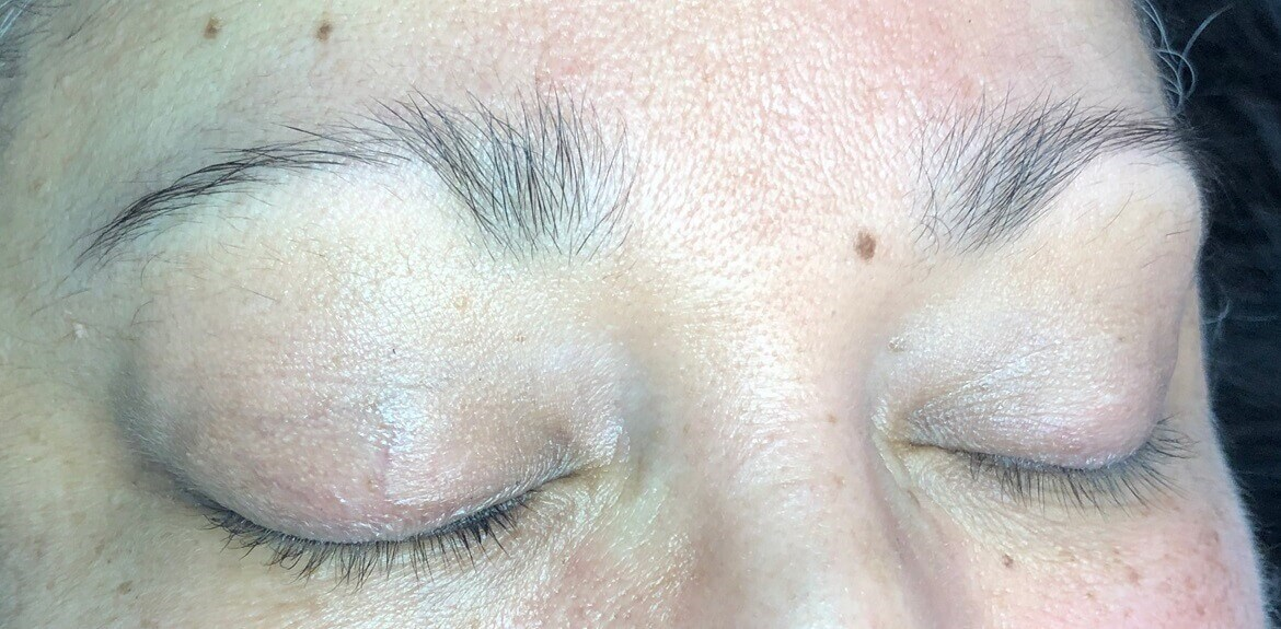 Before & After Microblading Before